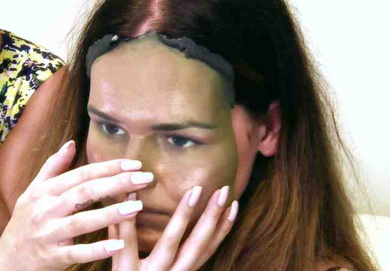 Ameliyat sonrası yüzüne dokunabiliyor